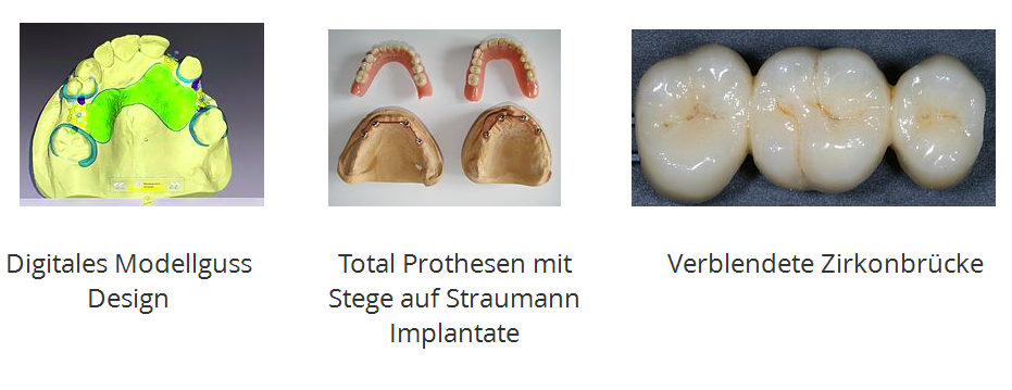 2017-01-10-18_01_47-nkvdental-_-deutsch